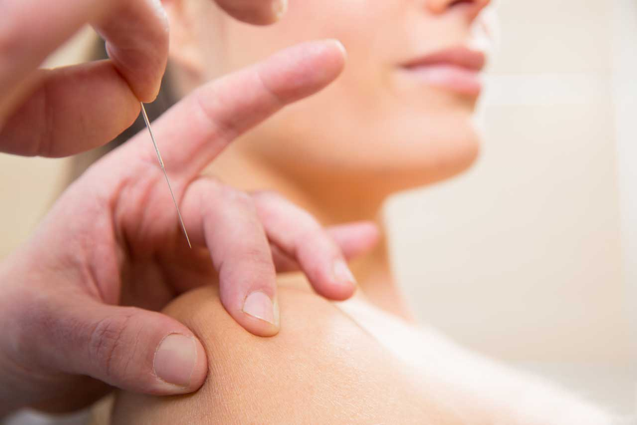 Dry needling | Fysiotherapie van Bommel in Vlijmen en Drunen